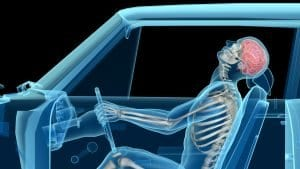 Man in car accident showing whiplash